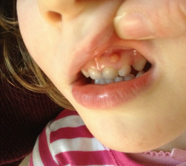 discoloured tooth in three year old, blister on gum on three year old